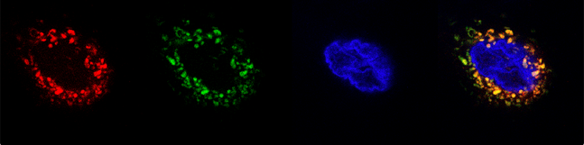 Micrographs of biosensors expressed in human cell lines