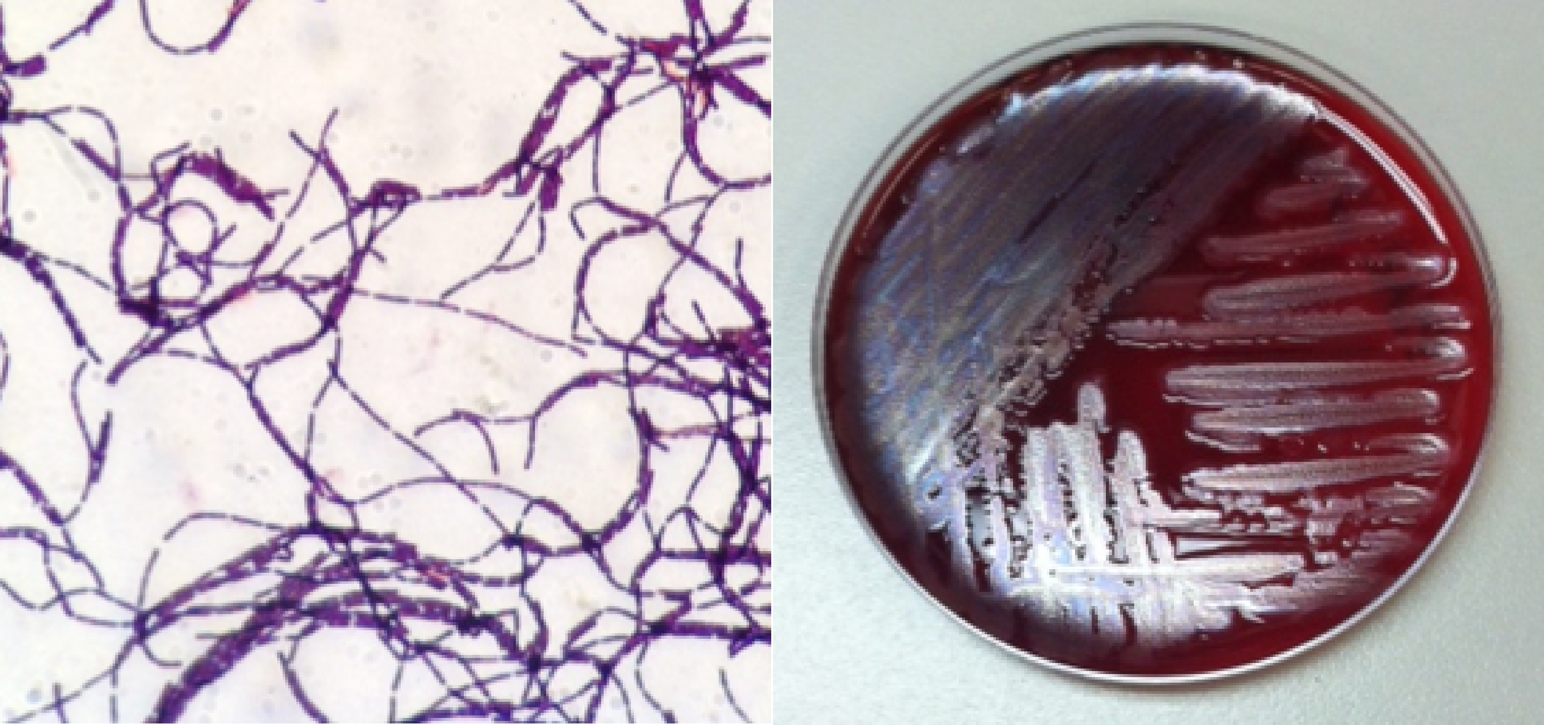 Antibiotic_Resistance_Twitter_2.png