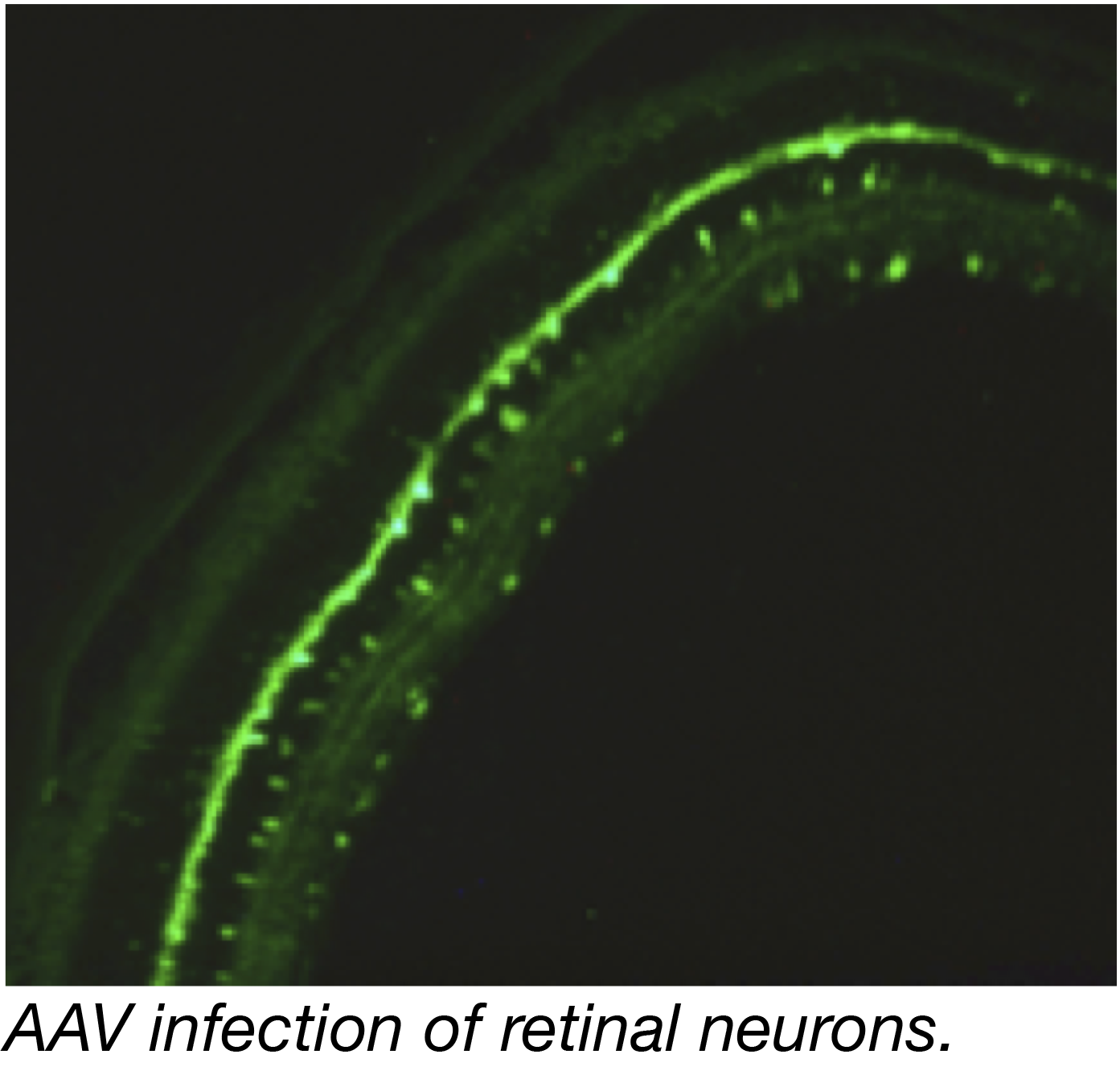 AAV Infection of Retinal Neurons Captioned