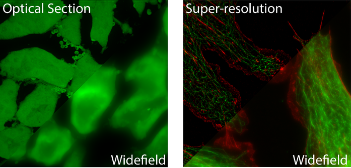 optical section vs super resolution microscopy