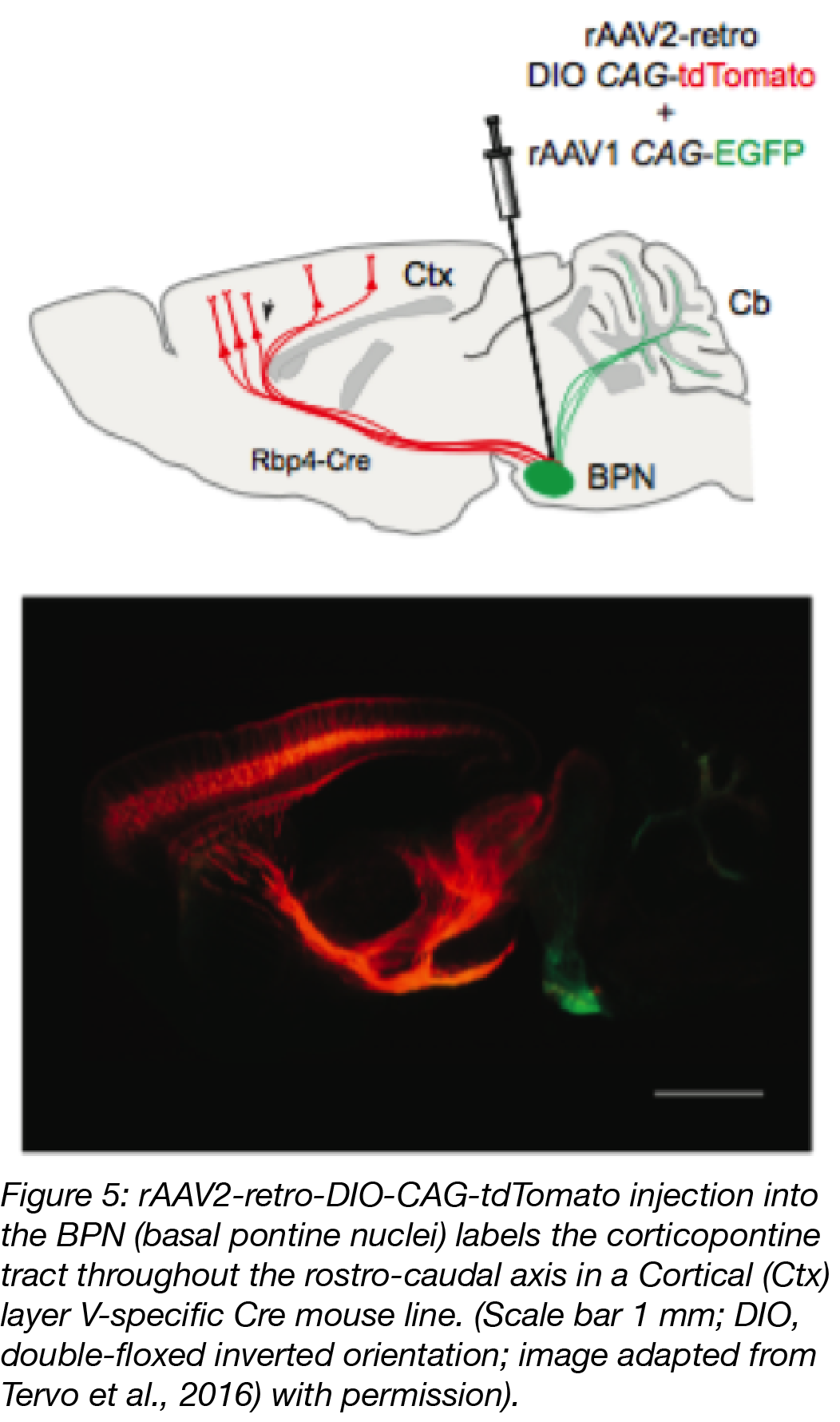 Retrograde AAV labeling of the mouse brain