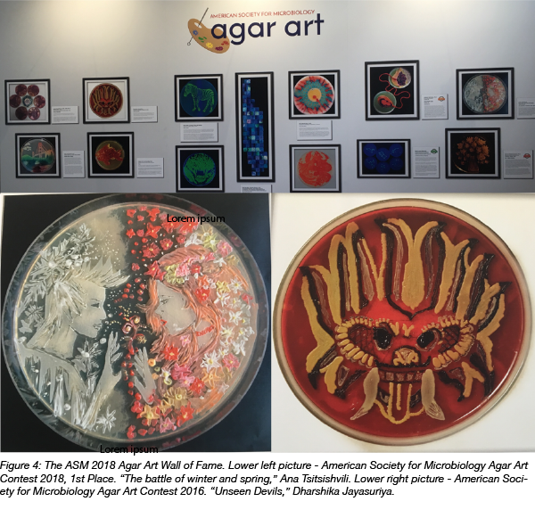 microbe agar art