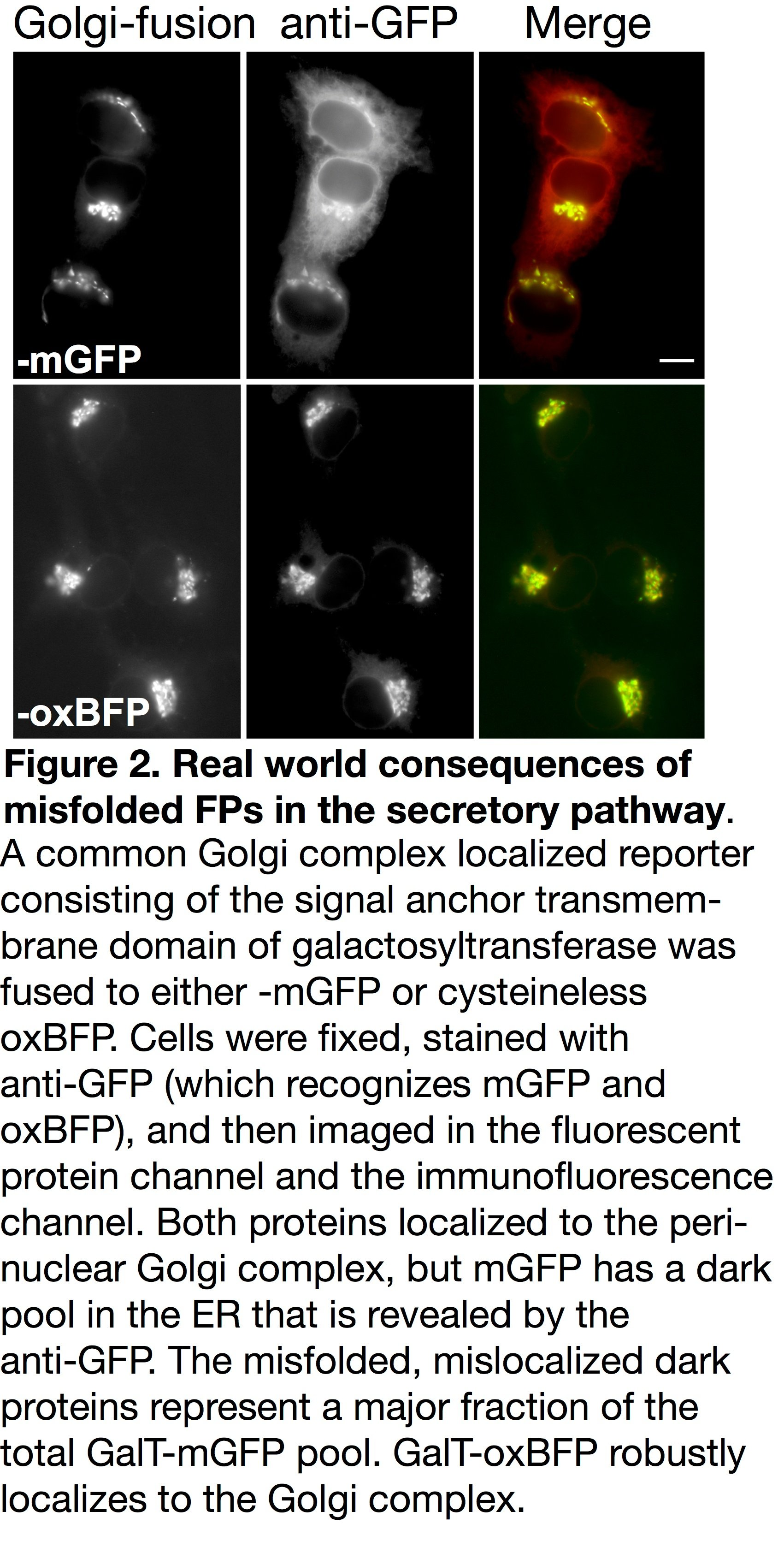mOX GFP in the golgi complex